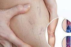 viszkető lábak visszér népi gyógymódok