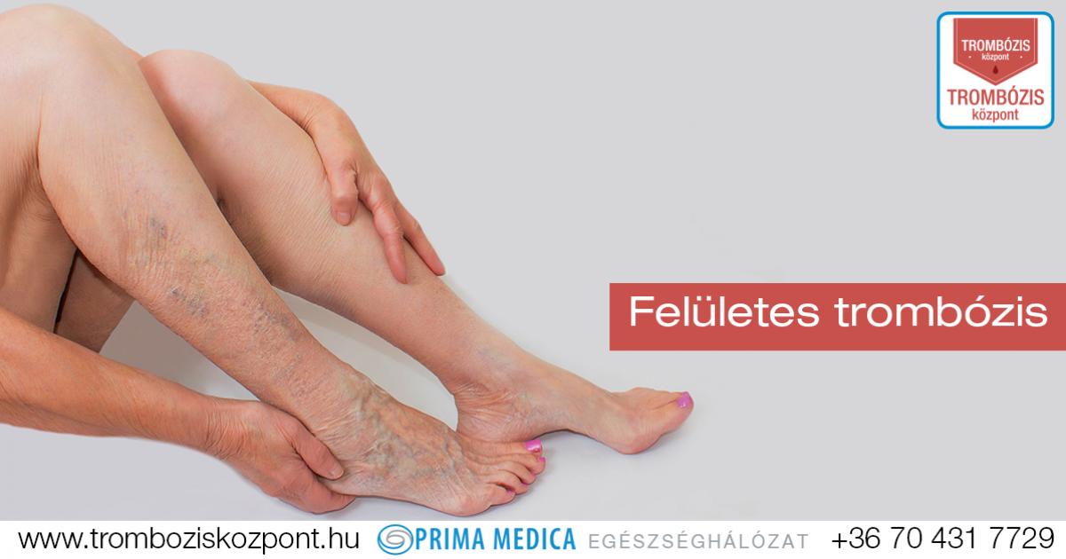 mi a diéta a visszerek a lábakon injekciók vénába visszerek ellen