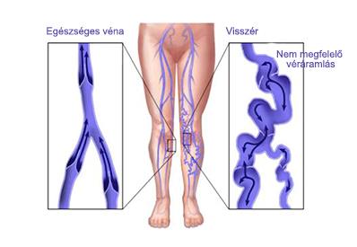 a varikózis miatt komplex