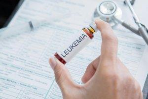 A visszérről és lehetséges kezelési módozatairól - Panoráma Medical Center