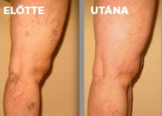 kenőcsök listája visszeres lábakon sclera visszérrel