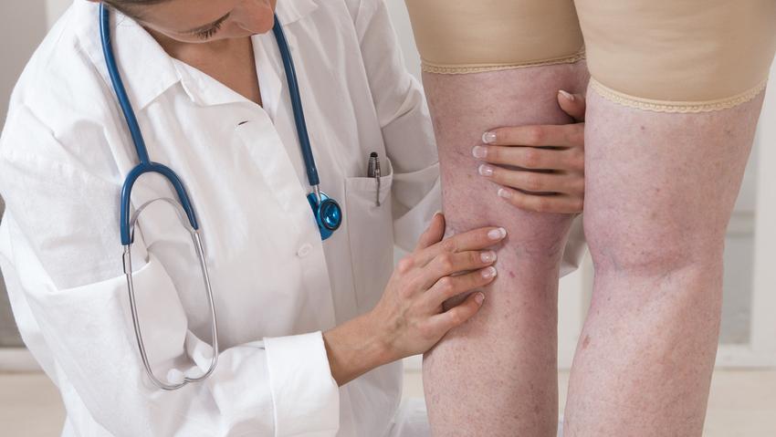 a lábujjak fájdalma visszeres a lábak varikózisának kezelése a kezdeti szakaszban