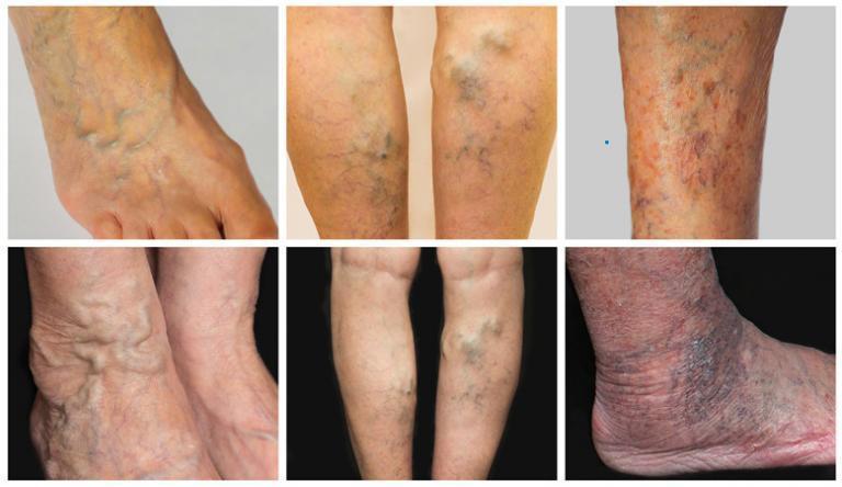 a felső láb visszerek miatt fáj