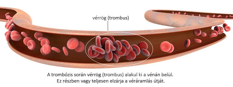 visszér vérhígítás
