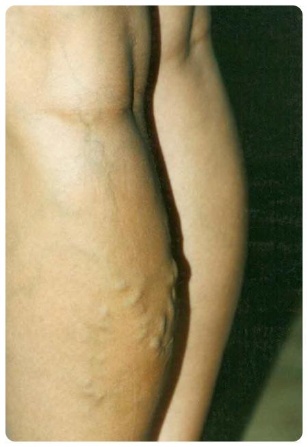 visszér műtét után haematoma