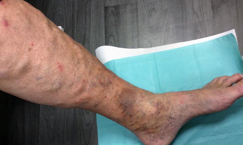 a lábakban kiálló vénák visszerek