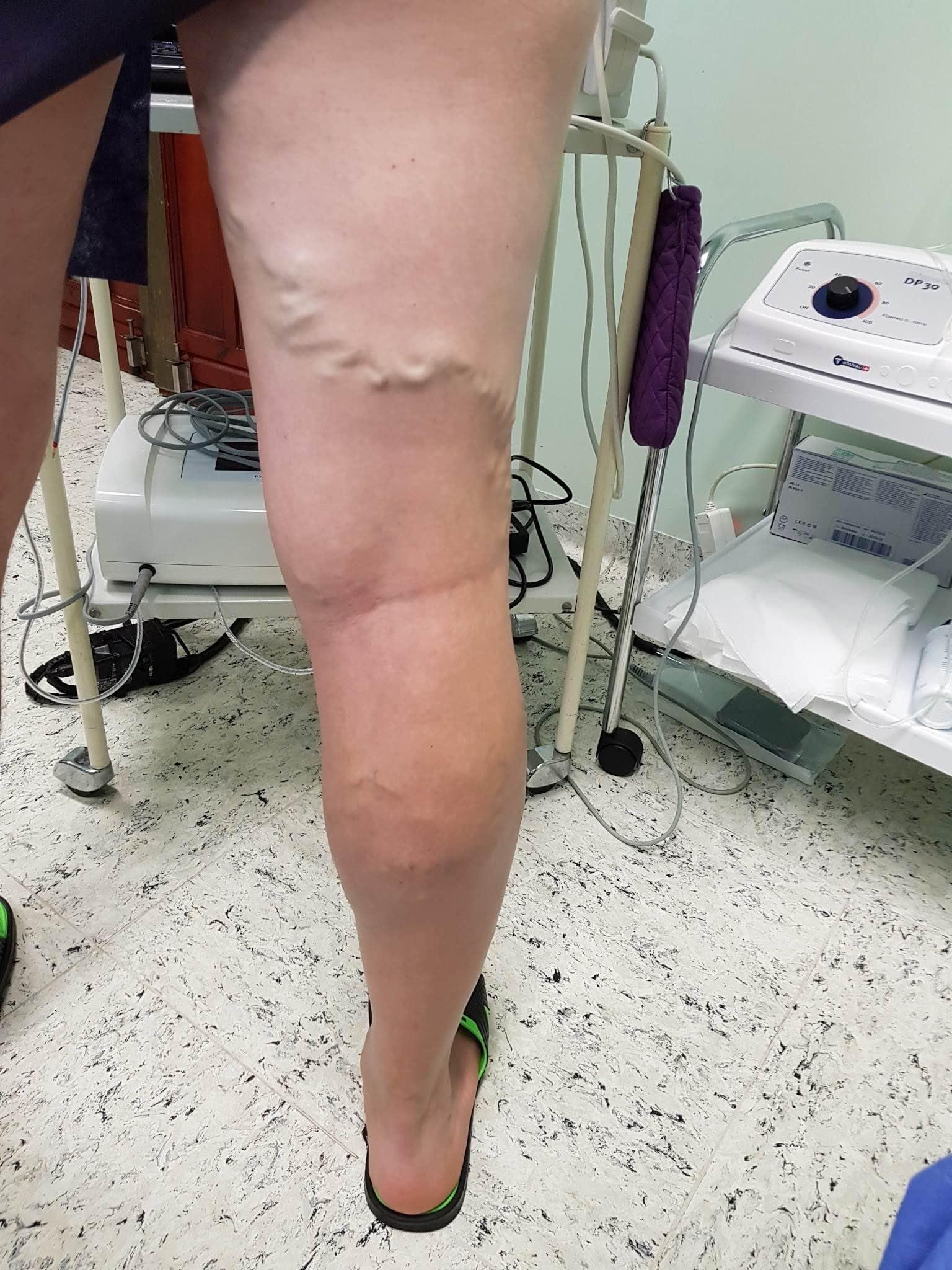 láb visszérműtét után)