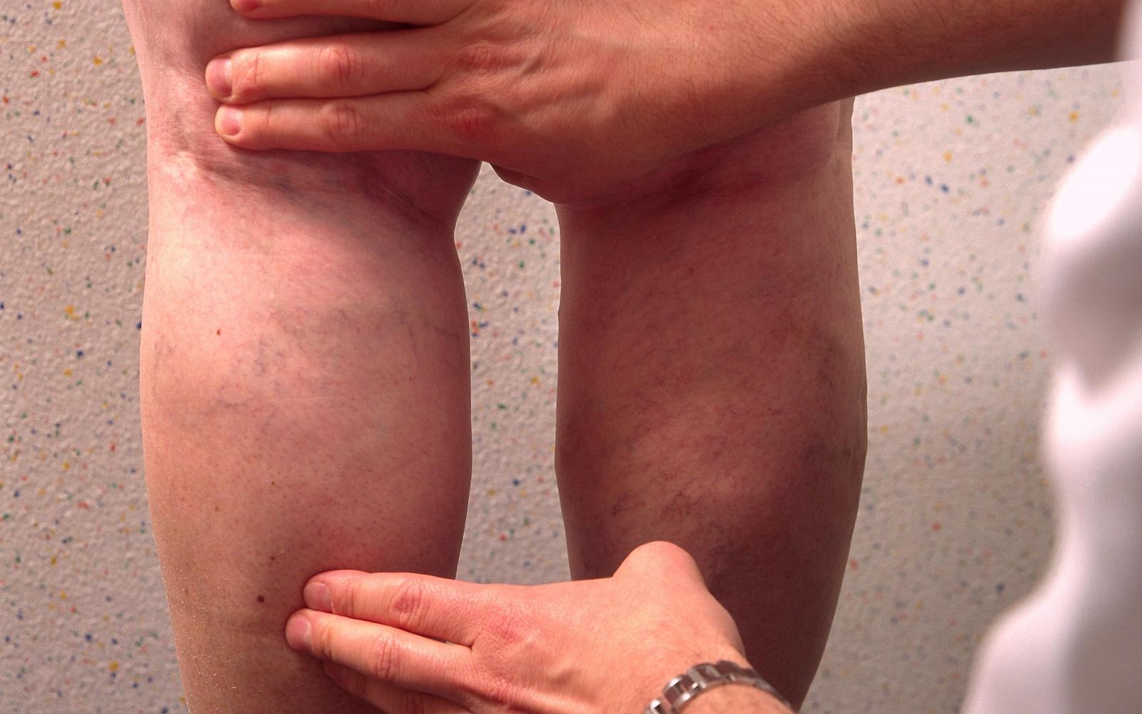 mit kell borotválni a visszér műtét során