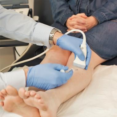 orvosi konzultáció a visszerekről
