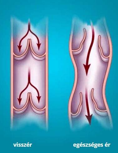 bőrirritáció visszérrel