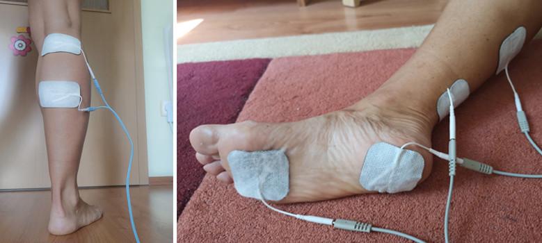 a lábak varikózisától erős)