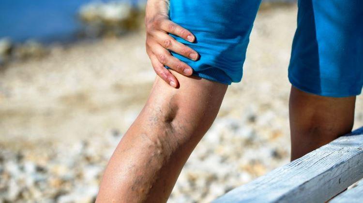 csavarja meg a lábát, mit tegyen a visszér visszér, hogyan lehet legyőzni