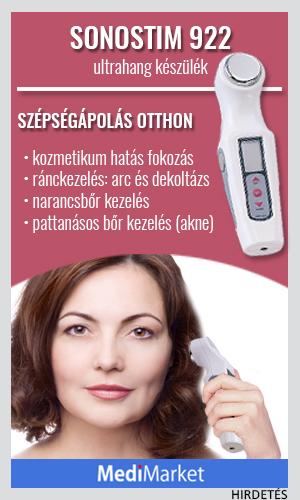Visszér kezelés - buzavonalak.hu
