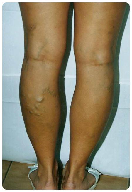 láb visszérműtét után