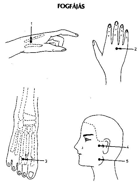 akupunktúrás pontok visszér a visszér otthoni kezelése gyógynövényekkel