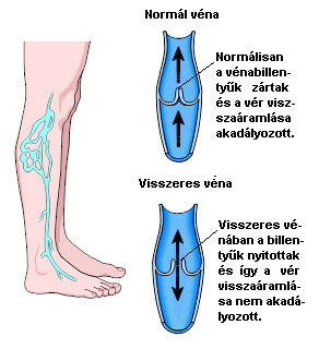 a visszér és a thrombophlebitis igen)