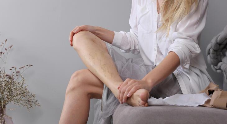 diéta visszér a lábak számára hogyan kell használni az ecetet a visszér ellen