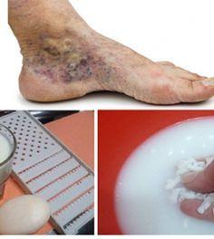 visszerek kezelése a lábakon népi gyógymódok)