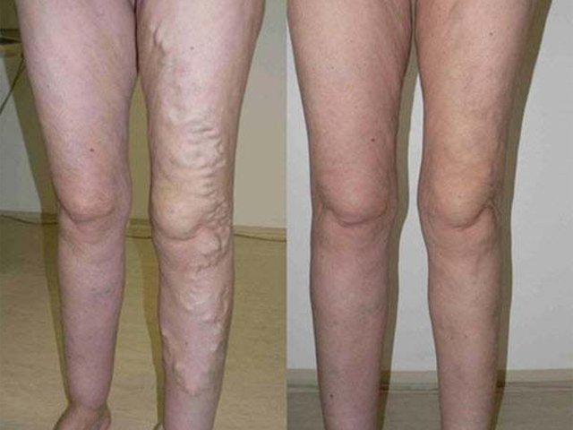 gyógyított visszerek otthon lézeres műtét visszér a lábakon