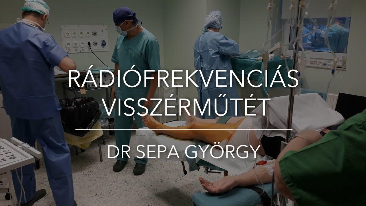 nézze meg a visszérműtét videót