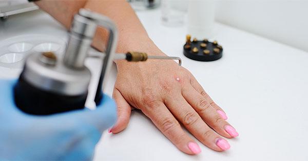 műtét a varikózis eltávolítására a kezeken