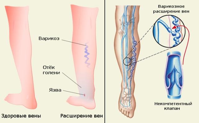 a lábak varikózisának kezelése ecettel)