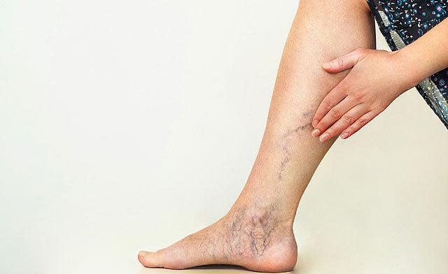 a belső visszér jelei a lábakon)
