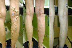 Varikozus saphenous vénák thrombophlebitis