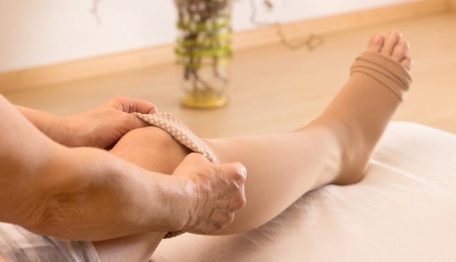 gyógyszer visszér a lábakon vélemények