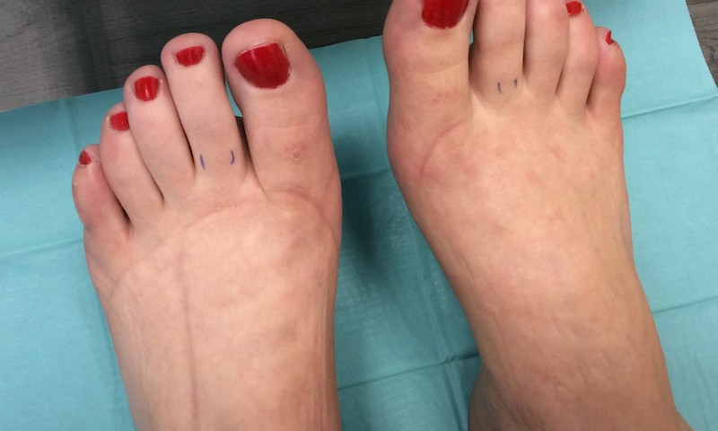 daganatokkal járó súlyos visszerek a lábon)