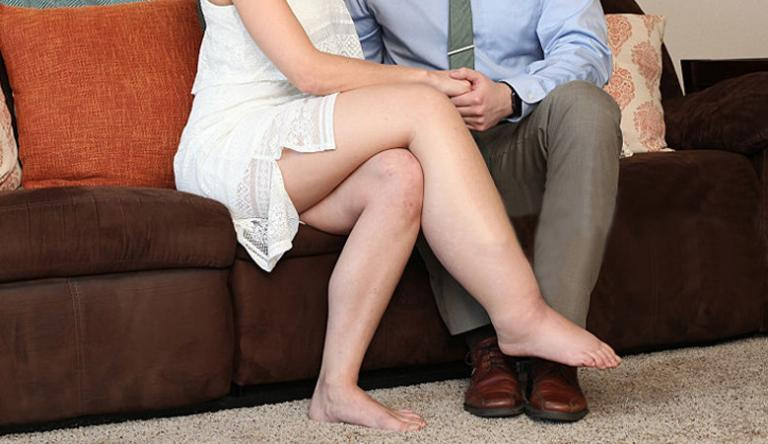 a láb erősen megduzzad a visszérben)