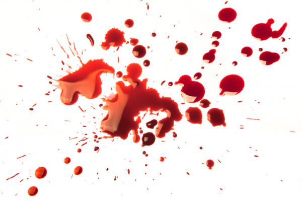 visszér és vércsoport