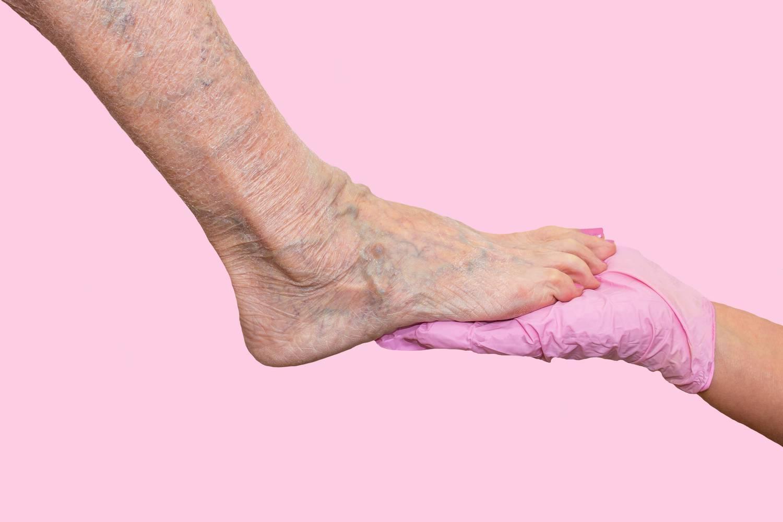 hagyományos módszer a visszér kezelésére visszér a lábakban és a hajszálerekben