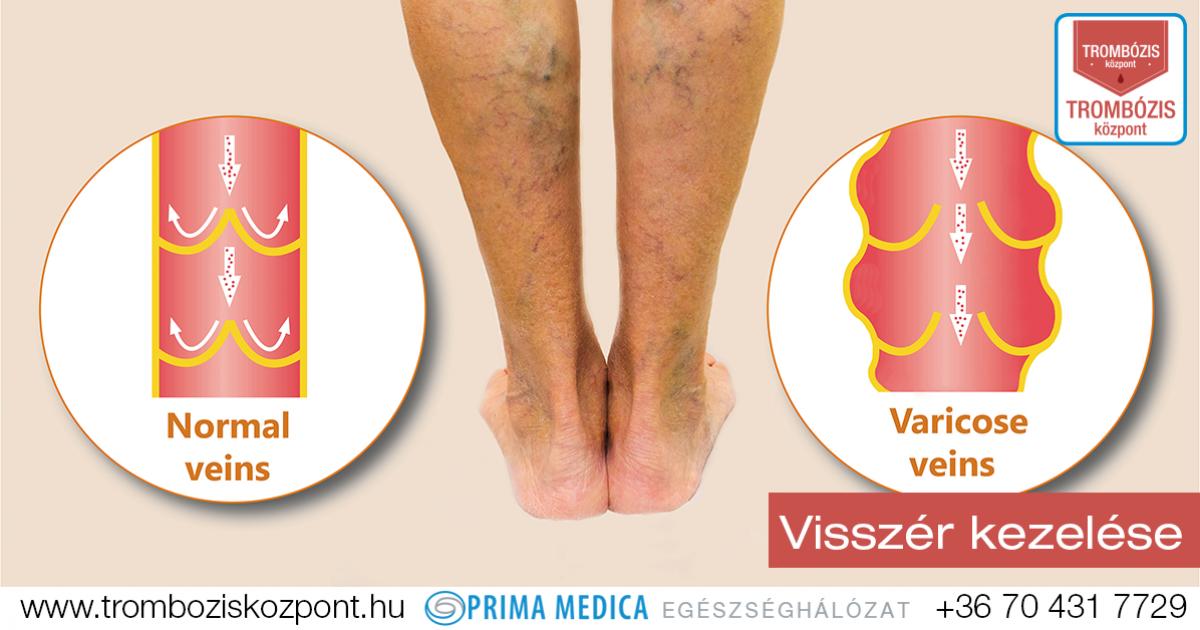 visszér kezelés a lábakon)