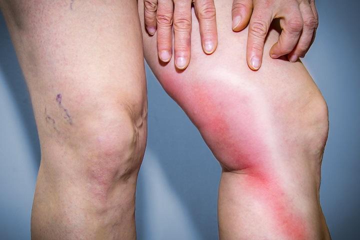 a lábakon visszeres fájdalom