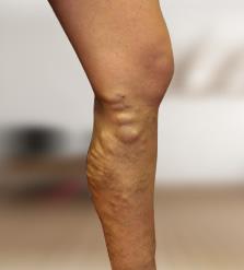 visszér csak a bal lábon áfonya visszér