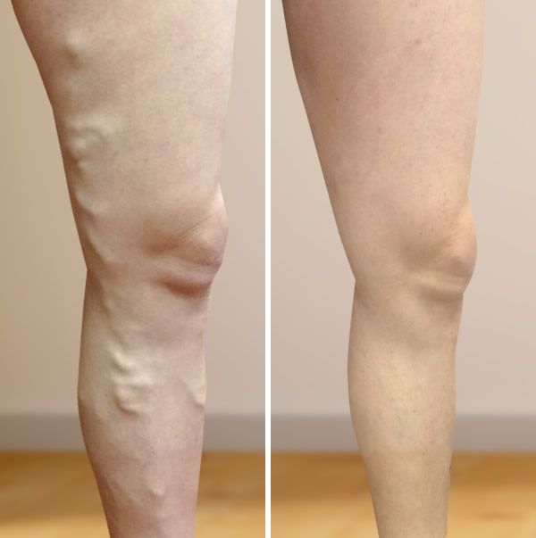 hogyan történik a láb visszérműtétje)