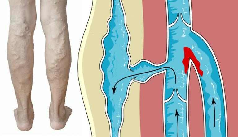 művénák a visszér ellen a lábak varikózisának okai és kezelésük