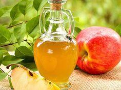 az almaecet felhasználásának módjai a visszér ellen