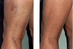 duzzanat a visszér lábain szakember a visszér kezelésében