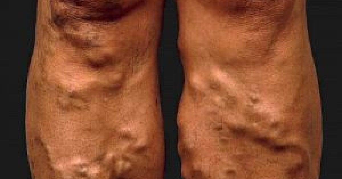 visszér visszér thrombophlebitis az alsó végtagok diéta