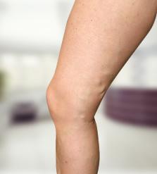 a visszér lézeres eltávolítása a lábakon videó