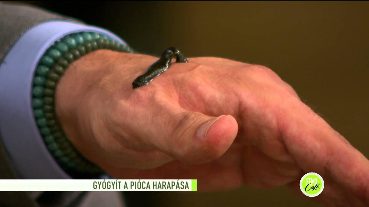 piócák a kéz visszerére