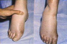 Almaecet a visszeres láb, hogyan kell használni - Varicobooster