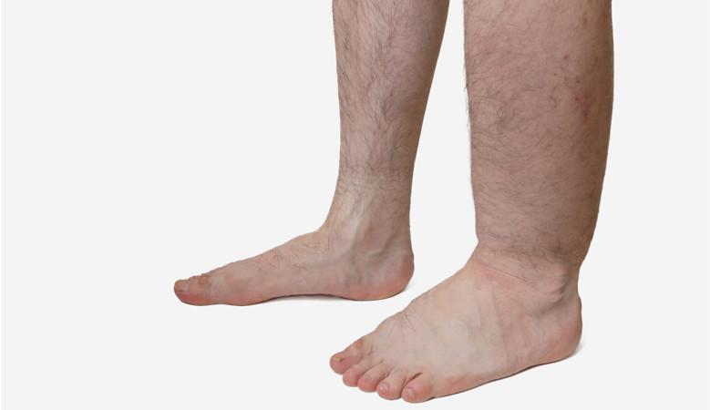 lába a visszér barna foltjaival