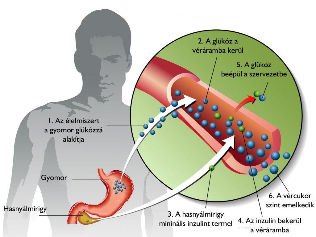 visszér és 2-es típusú cukorbetegség műtéte)