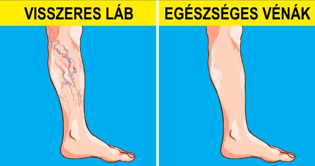 jó kenőcs a visszeres lábak számára