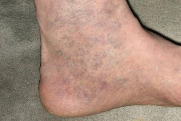 visszér kék lábak