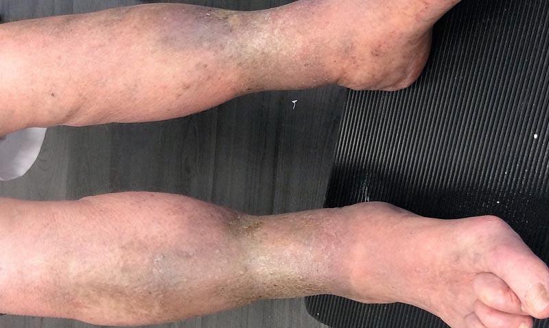 gyulladás az alsó láb visszérrel)