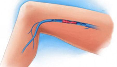 a varikózisos tromboflebitis megelőzése)